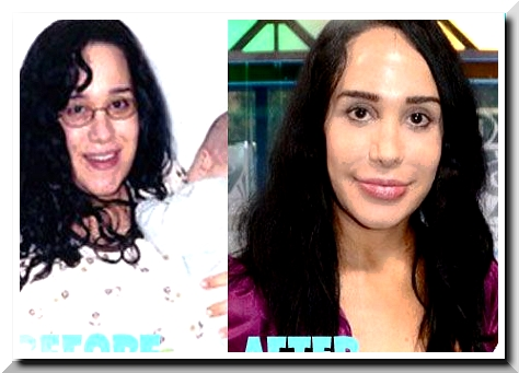 Denying the Age – The Case of Nadya Suleman Plastic Surgery